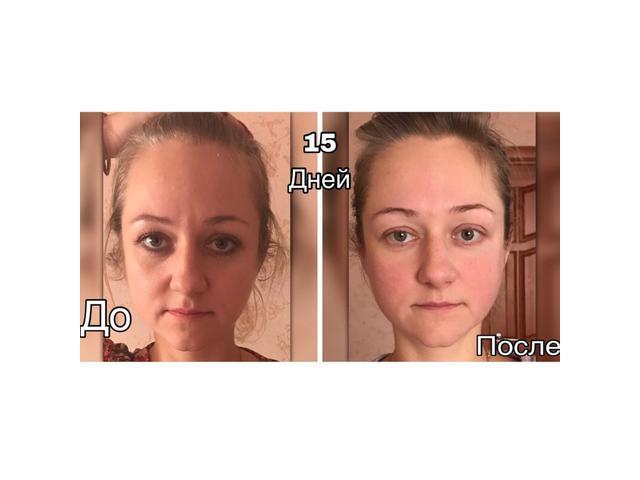 Массаж лица тела Практикую различные виды массажей